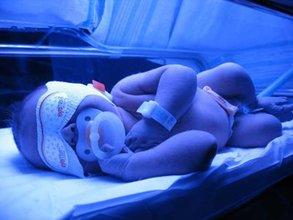 پرتو نوزاد پارس | عوارض عدم درمان زردی در نوزادان