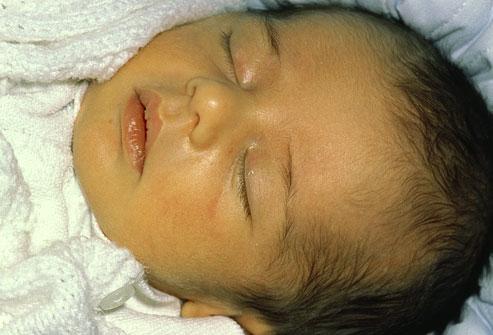 پرتو نوزاد پارس | تشخیص زردی نوزادان