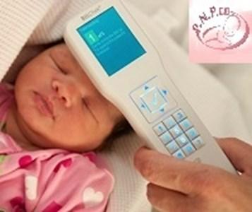 پرتو نوزاد پارس | دستگاه تست زردی، بیلی چک