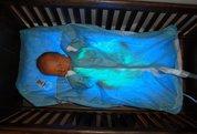 پرتو نوزاد پارس | دستگاه پتوی فتوتراپی OHMEDA BILIBLANKET