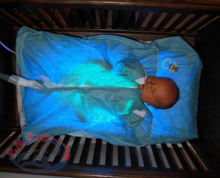 پرتو نوزاد پارس | درمان زردی بدون چشم بند