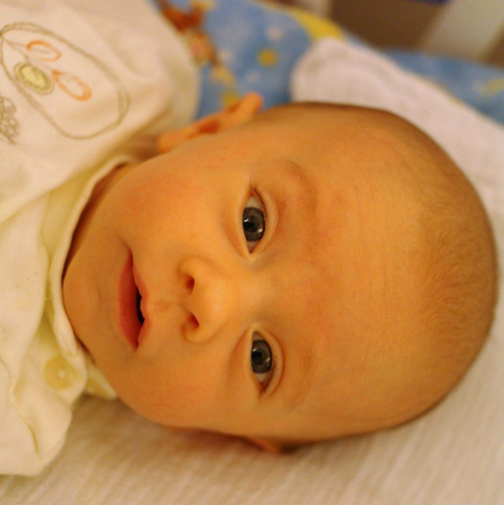 پرتو نوزاد پارس | چگونه زردی نوزاد را درمان کنیم